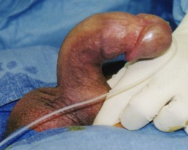Plaque-removal-surgerybefore