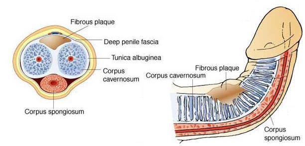 peyronies-disease